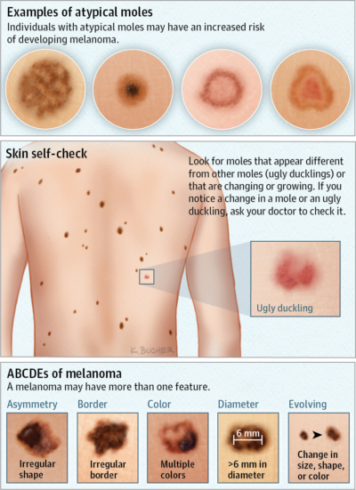 atypical moles diagram