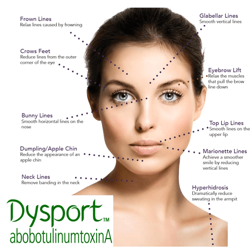 dysport with highlighted areas of the face showing how dysport can help
