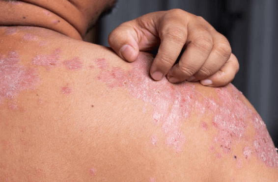 itchy psoriasis on patients back