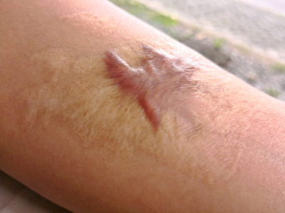Close up Keloid scar on man arm skin after accident
