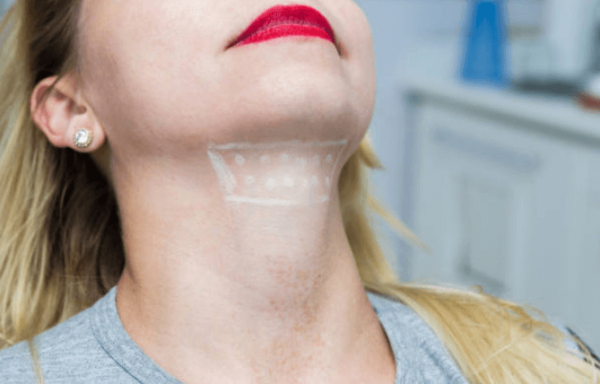 kybella placement on patient's neck